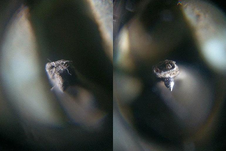 Onzow-ZeroDust-cleaning-very-dirt-needle